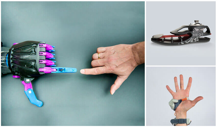 3D Printed Medical Tools and Prosthetics